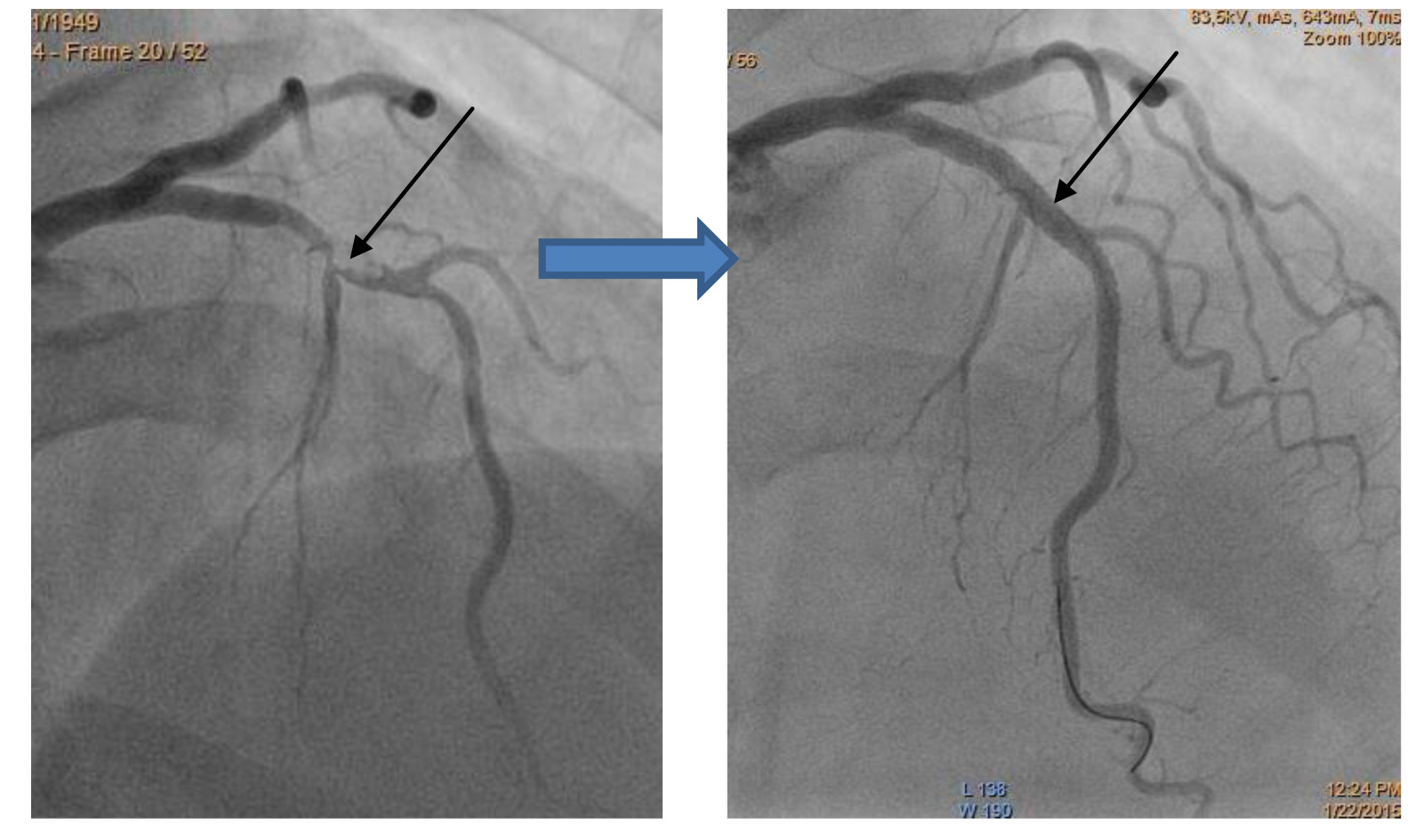 Хронические окклюзии артериальных сосудов фото