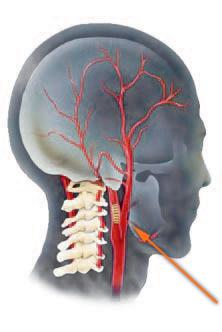 Первые признаки атеросклероза сосудов нижних конечностей