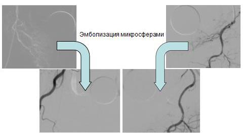 Как определить симптомы рака предстательной железы