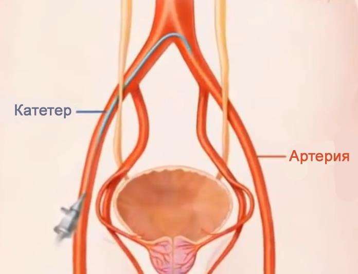 Атипичные клетки предстательная железа