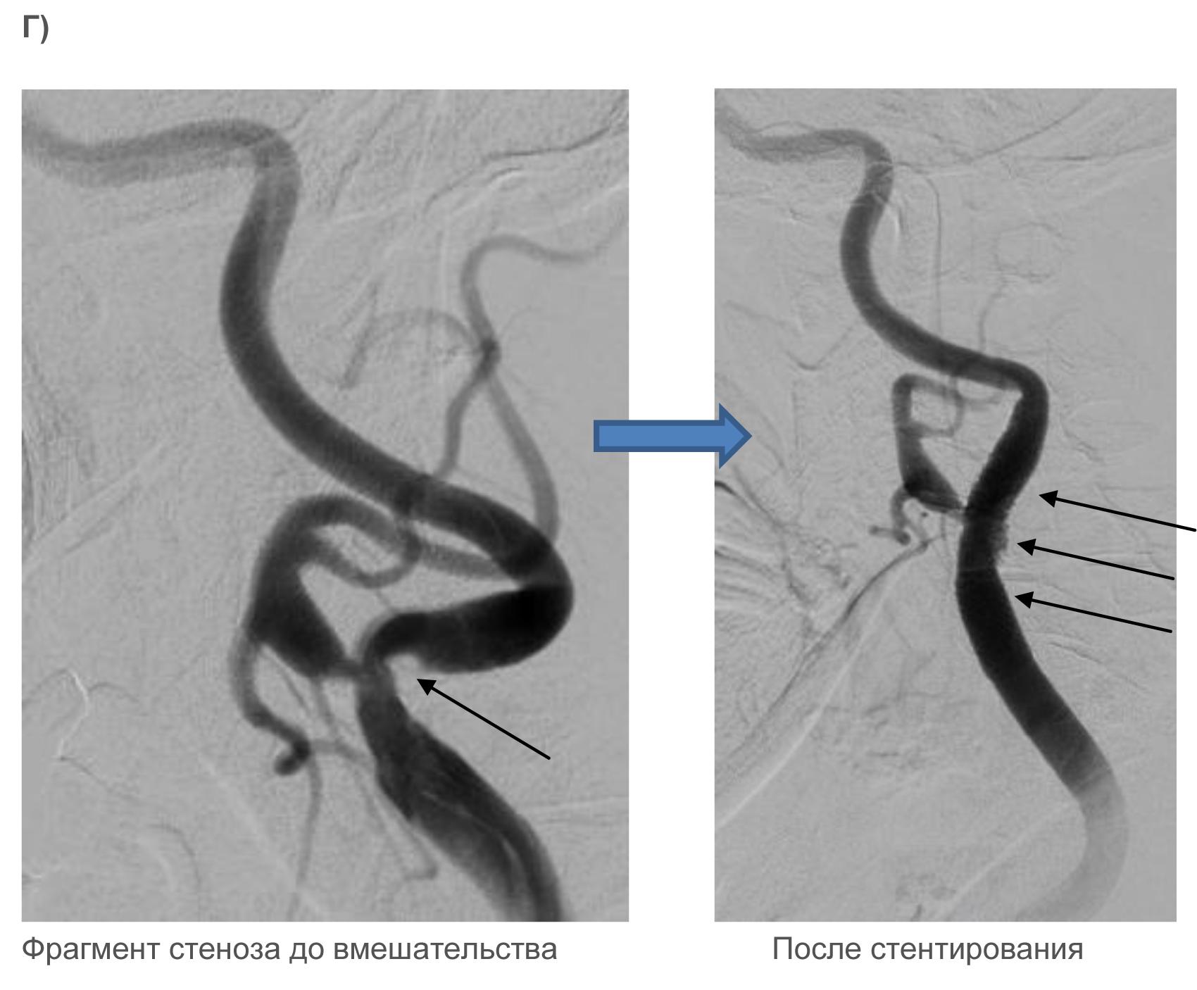 Тибетская медицина атеросклероз сосудов головного мозга лечение